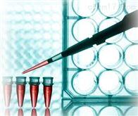 反硝化细菌实时荧光定量PCR