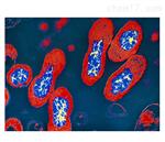 試劑盒百日咳杆菌抗體檢測試劑盒