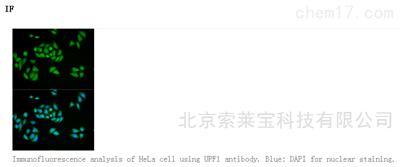 Anti-UPF1 Polyclonal Antibody
