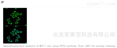 Anti-CPT1A Polyclonal Antibody