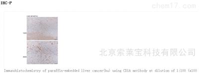 Anti-CD1A Polyclonal Antibody