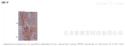 Anti-CYP2C9 Polyclonal Antibody