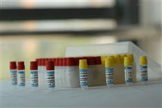 人尿液中重金属铅检测质控品
