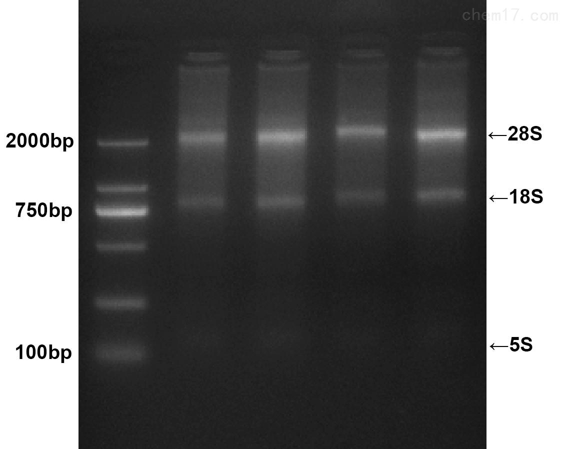 血液RNA DNA小量提取试剂盒提取系列