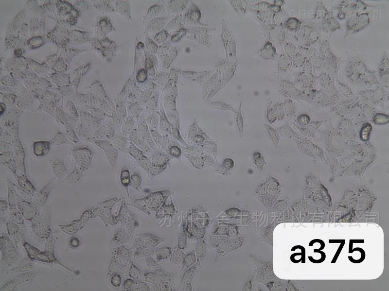 人恶性黑色素瘤细胞A375 STR鉴定细胞