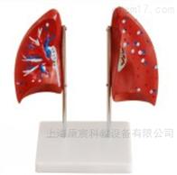 KAC/321肺解剖模型
