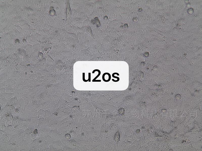通过STR鉴定U2OS人成骨肉瘤细胞