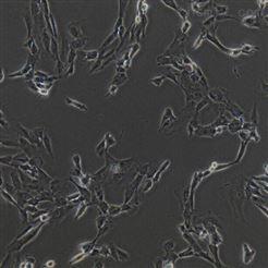 SW982SW982 人滑膜肉瘤细胞
