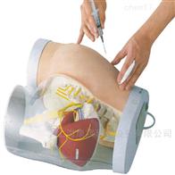 KAC/TB臀部肌肉注射及对比模型