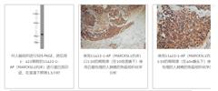北京华新Proteintech一级代理